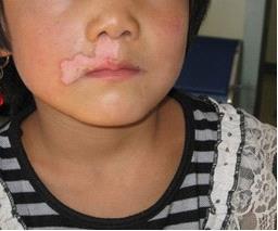 北京白癜风医院:女性患上白癜风需要注意哪些